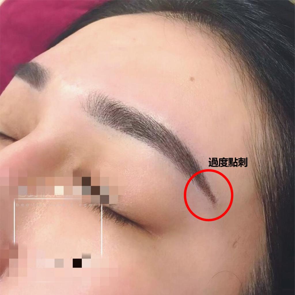 眉尾過度點刺示意圖